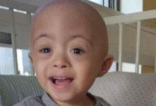 Photo of Sigue cruzada de ayuda para pequeño chilote con grave enfermedad